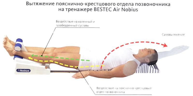 Лечение позвоночника по дикулю 125
